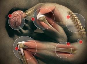 Tratamentul osteoartritei genunchiului prin ridicarea plasmei