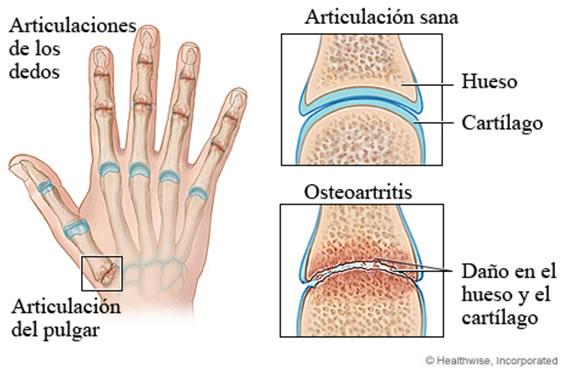 Studiu privind osteoartrita