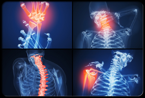 rheumatoid_arthritis_s6_symptoms
