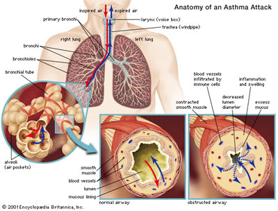 anatomy-of-an-asthma-attack