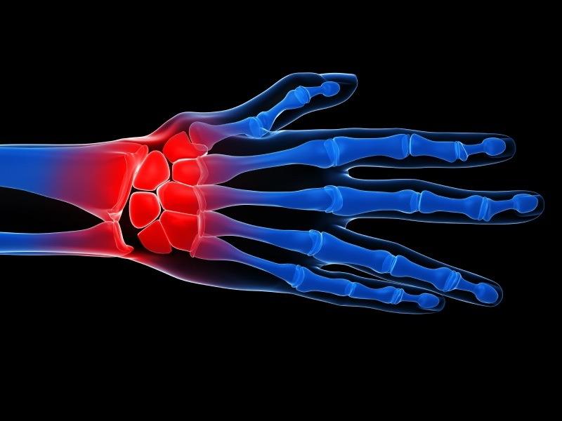 agenți patogeni ai inflamației articulare