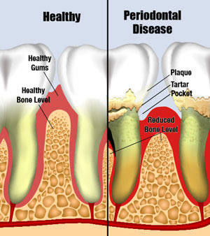 periodontaldisease