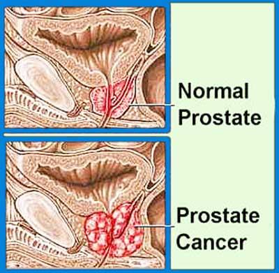 Ce inseamna prostata mare
