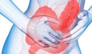 sindrom de colon iritabil