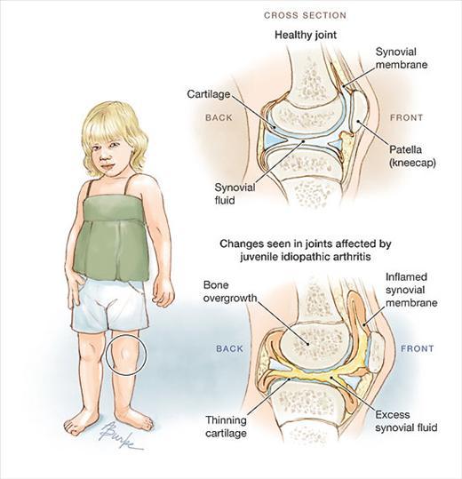 artrita juvenila