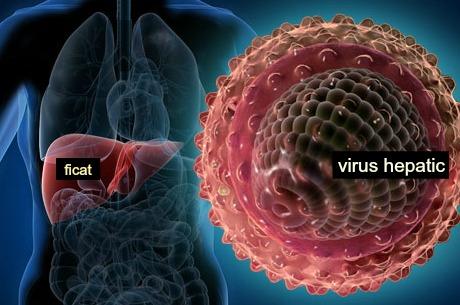 hepatita 1