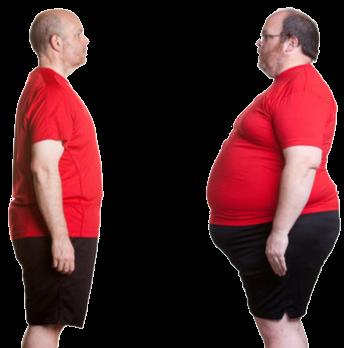 obezitate 2