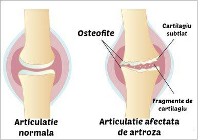Stiai ca Extract95 Curcumin&BioPerine iti e de ajutor daca ai artroza