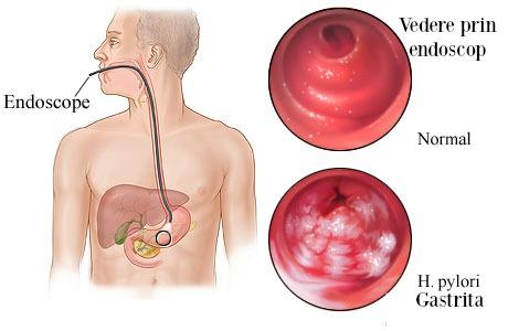 Tot ce trebuie sa stii despre Helicobacter pylori