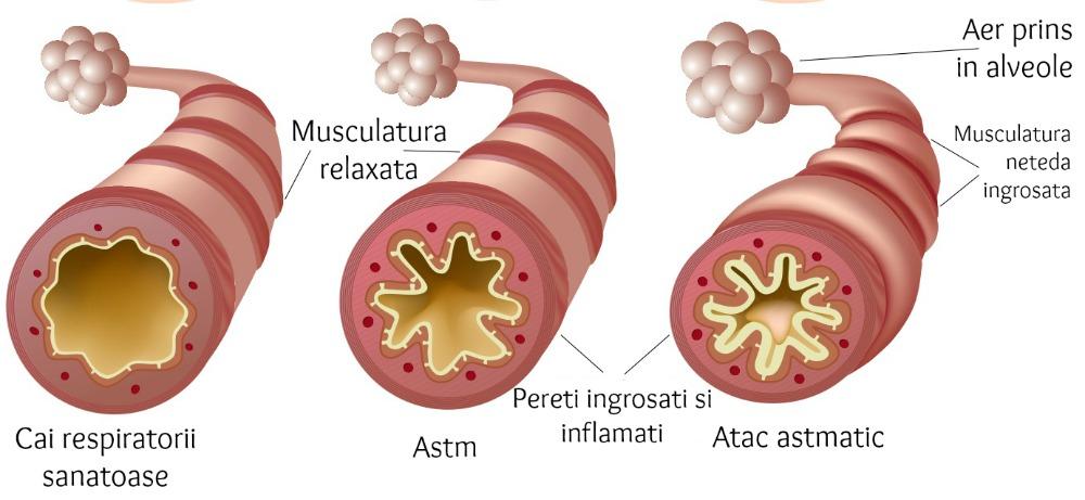 astm 3