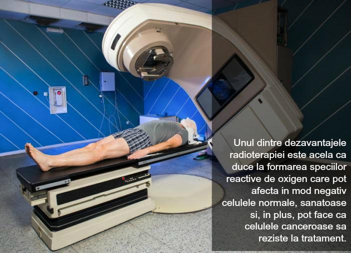 radioterapie-1